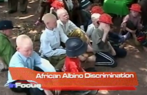 African Albino Descrimination